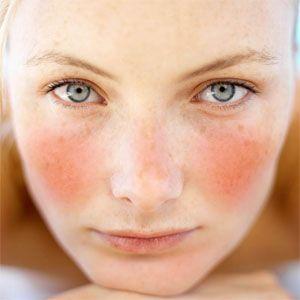 Le traitement des taches de pigment longuent